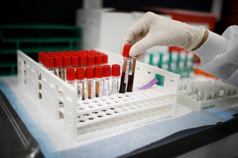 CORONAVIRUS | ¿Qué grupos sanguíneos tienen mayor riesgo de Covid-19?