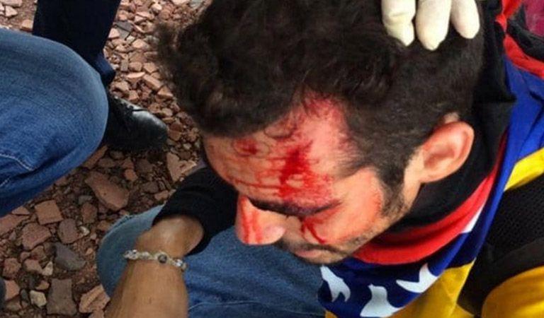 Manifestantes fueron heridos durante represión en Maracaibo